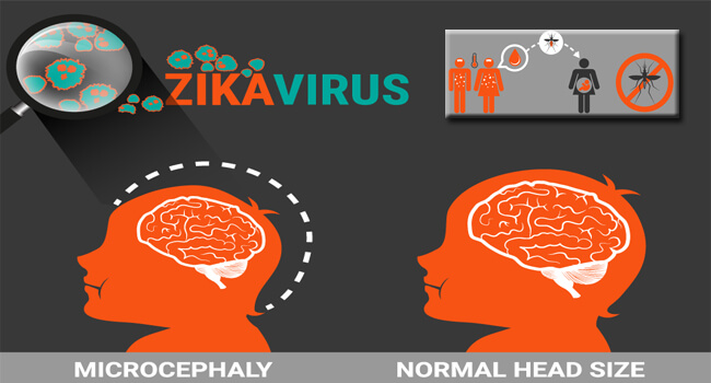 ZIKA VIRUS HOW IT CAN AFFECT YOU AND YOUR FAMILY